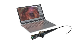 PatCom Medical FEES mobile system for Fiberoptic Endoscopic Evaluation of Swallowing
