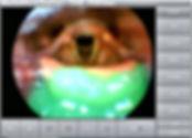 Video Recording software for FEES and video stroboscopy and DICOM