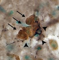 microglia wrapping around neuronal cluster