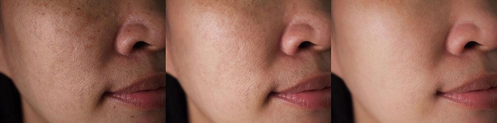 laser-facial-treatments.jpg