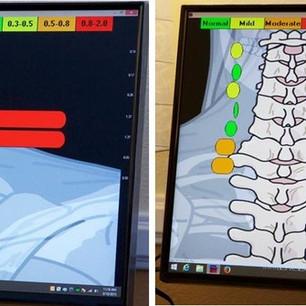 Thermal Tomography