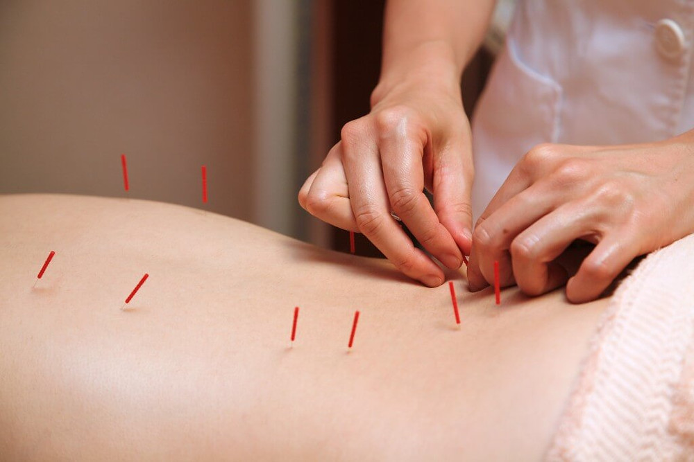 Acupuncture for Infertility truly helps