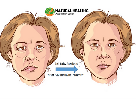 Acupuncture Heals Bell Palsy (Facial) Paralysis