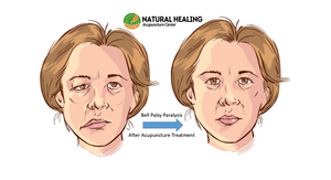 Bell Palsy Paralysis Acupuncture Treatment
