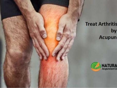 Arthritis Acupuncture