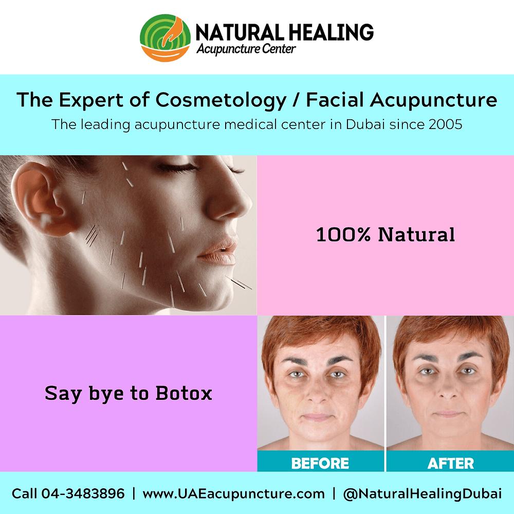 Best Acupuncture Facial in Dubai 04-3483896