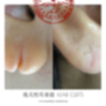 ear-cleft-nishiyama2.jpg