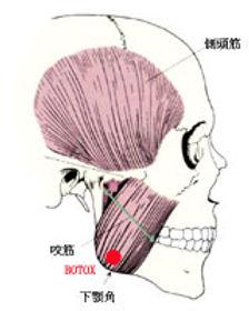 顎の筋肉BOTOX.jpg
