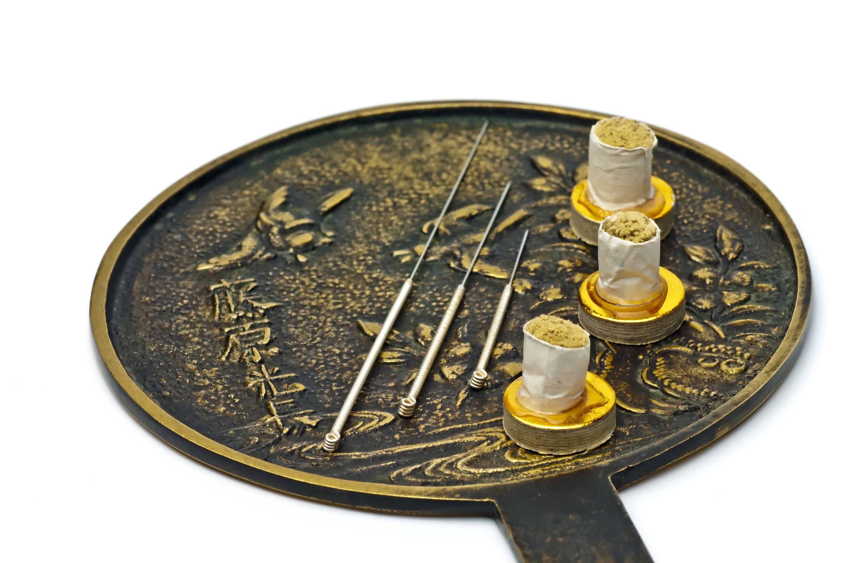 Acupunctuur (1e afspraak)