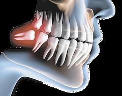cirurgia-oral-menor-1473985883_edited.pn