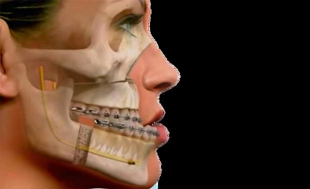 cirurgia-maxilar_edited.png
