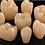 Thumbnail: Implante dental guiado por computadora+ bonos de regalo