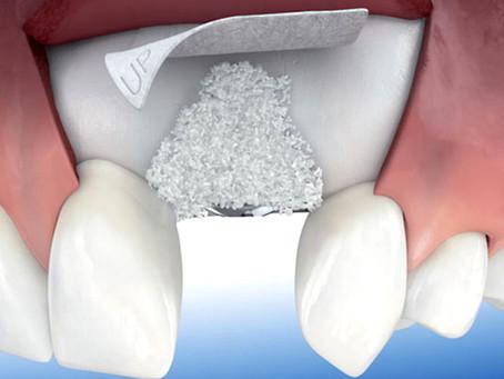 [14/20] ¿Qué tipo de injertos se pueden colocar cuando falta hueso o encía para colocar implantes?