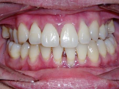 ¿A qué edad se pierden los dientes?