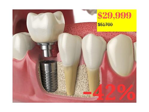 Implante dental guiado por computadora+ bonos de regalo