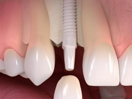 [4/20] De qué están hechos los implantes dentales