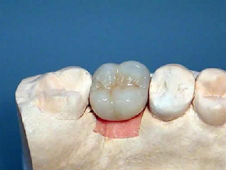 [3/20] Partes de un implante dental