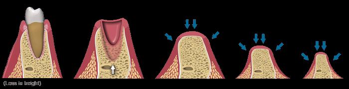Pérdida de hueso tras perder un diente