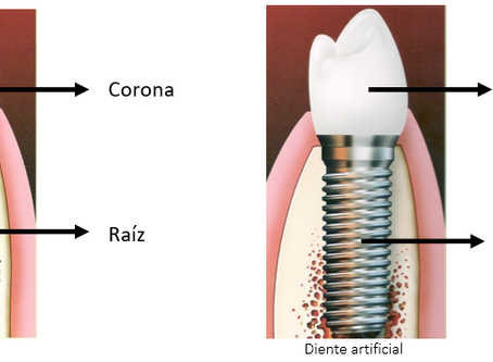 [2/20] ¿Qué es un implante dental y cómo es qué funciona?
