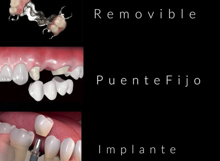 [1/20]¿Por qué perdí mis dientes? ¿El implante es la mejor opción?