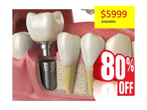 Limpieza dental+Consulta de valoración