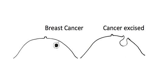 Breast cancer treatment with Intrabeam TARGIT IORT
