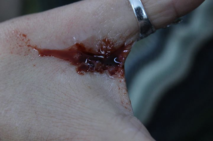 A bloody cut