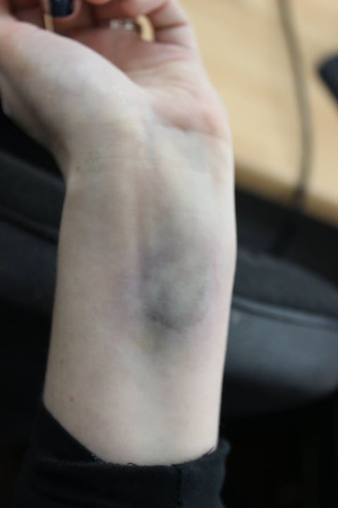 A bruise