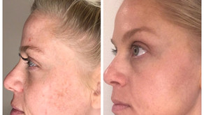 Halo Laser Treatment with Charleston Medical Spa