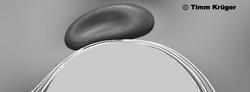 RBC+DLD_gray_edited