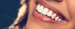 000020378591-dental-bonding