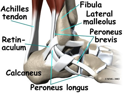 Peroneal Tendinitis