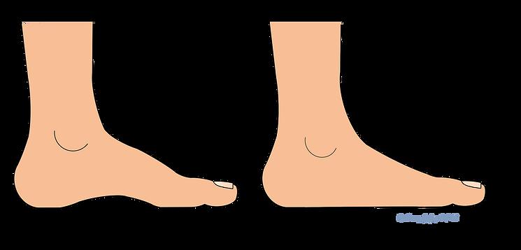 Flat Feet1.png