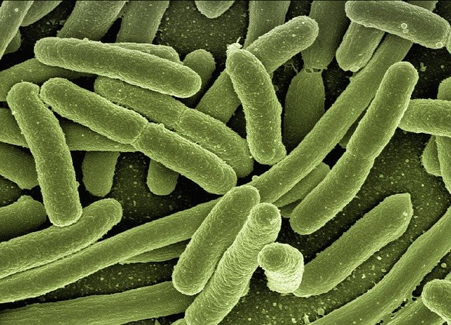 Example of bacteria at high magnification—source—Pixabay