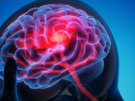 ¿Por qué consideraría la estimulación cerebral profunda como adulto autista?