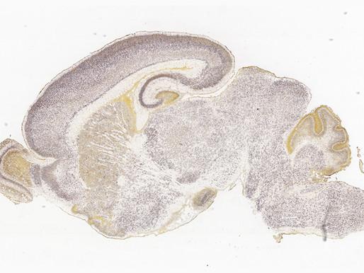 Los genes del autismo pueden jugar un papel clave en el desarrollo de la amígdala