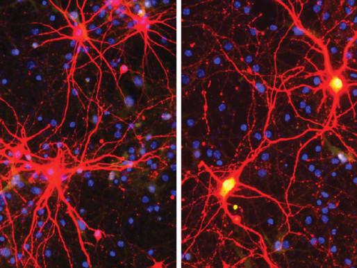 La terapia prenatal CRISPR bloquea los rasgos del síndrome de Angelman en los ratones
