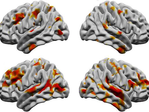El aislamiento delgado puede explicar el grosor cortical atípico observado en el autismo
