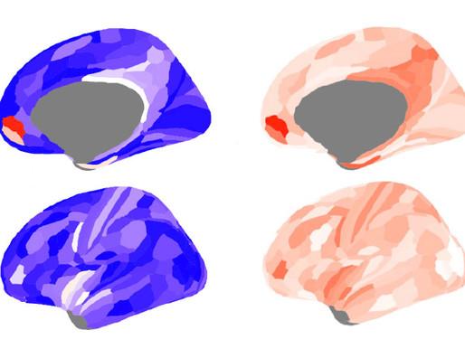 El desequilibrio de señales cerebrales y los rasgos del autismo