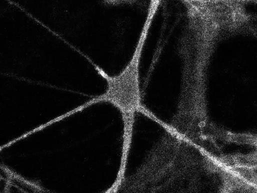 Un sensor ayuda a los científicos a espiar la actividad de la serotonina en ratones en tiempo real
