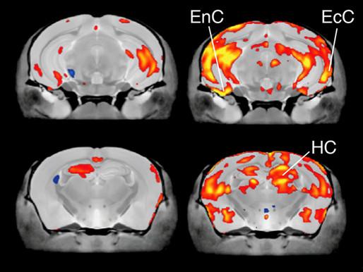 El principal gen relacionado con el autismo tiene efectos divergentes en el crecimiento del cerebro