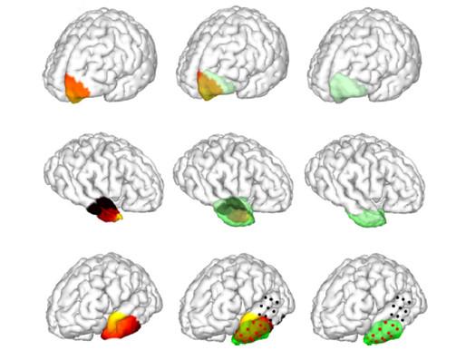 El nuevo enfoque no invasivo mapea las áreas del cerebro que generan las convulsiones