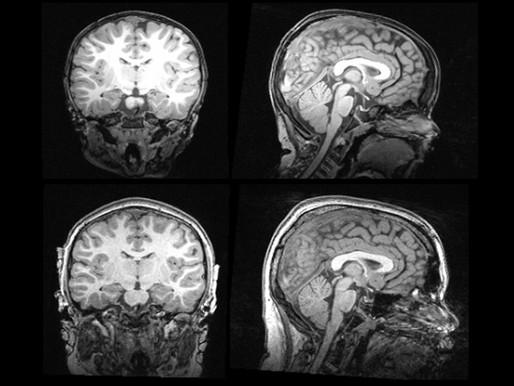 El cerebro más grande de lo normal puede marcar el subtipo de autismo