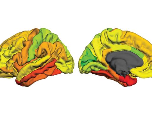 El autismo comparte los cambios de la estructura cerebral con otras condiciones psiquiátricas