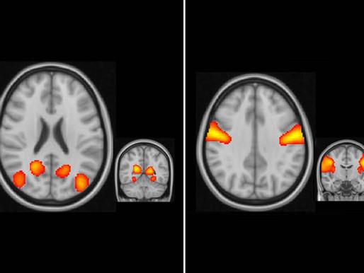 Las redes sensoriales están sobreconectadas al inicio del desarrolo del autismo