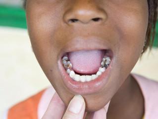 Cours d'hygiène Bucco-dentaire à l'école Aïssatou Diop