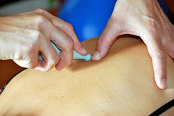 Triggerpunkttherapie