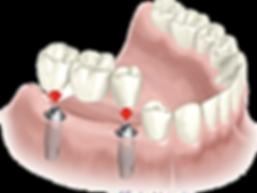 implantes dentales, corona, corona de porcelana