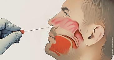 20200405_Ilustração-Cavidade-Nasal-swa