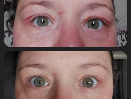 This is a progress picture of a client that suffers from Blepharitis, she was using my 'Brightening eye gel' for just three days.